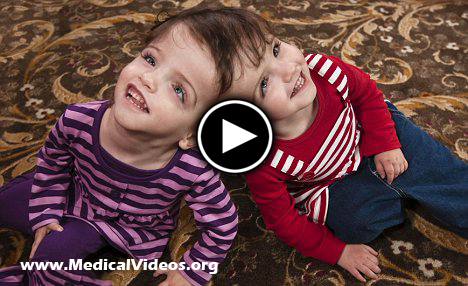 Video: Conjoined Twin Sharing One Brain