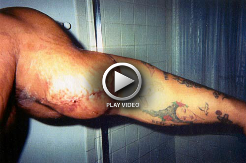 Fake Muscle Building: The Man Whose Arm Exploded | | DOKTORZ