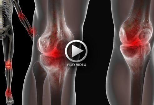 3d4medical_rm_illustration_of_-joint_pain