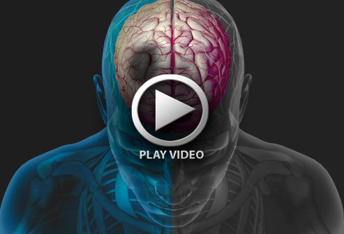 493x335_understanding_stroke_slideshow
