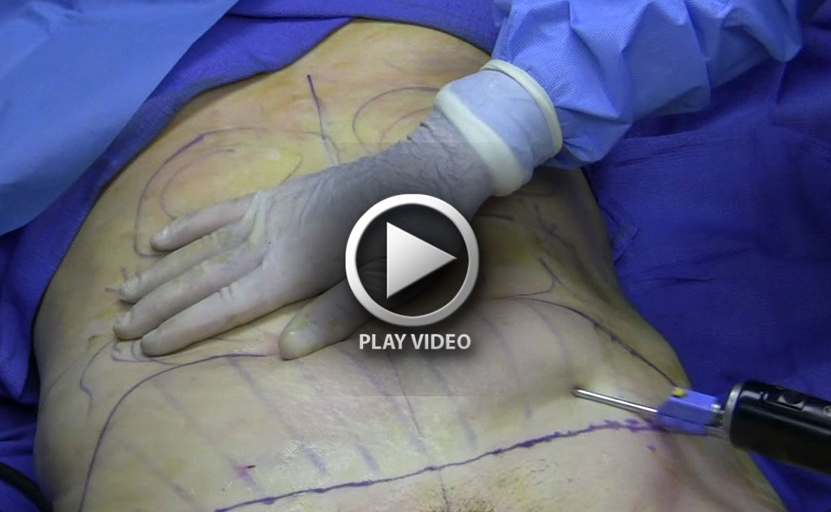 Fat_removal_using_cannula_during_tumescent_liposuction