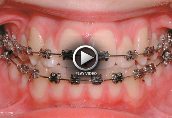 Fixed Braces (CMYK)