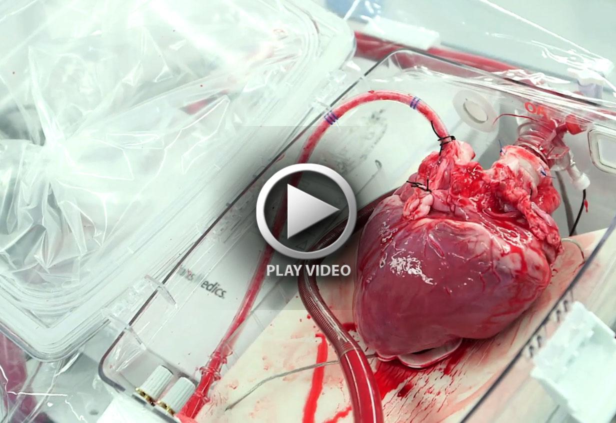 HeartBox-StillHeart