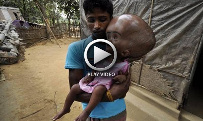 Indian girl with swollen head 02