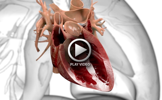 Medical_animation_heart-surgery-3d-translecent
