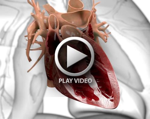 Medical_animation_still_5_large