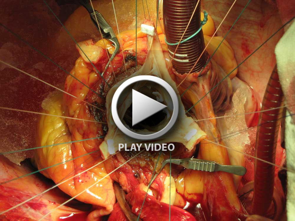 Open-Heart-Surgery (1d)