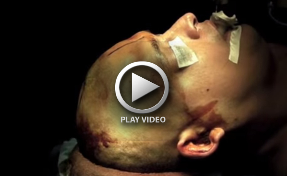 Human Brain Anatomy Video Gallery Human Body Organ Chart