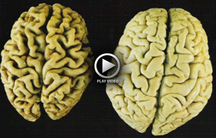 brain-alzheimers