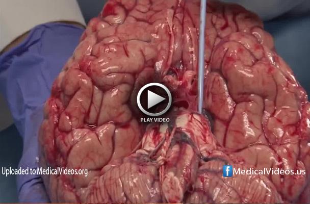 brain wormn