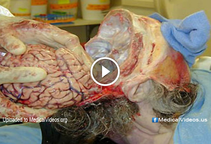 Medical Videos: Removing Brain Attached to Spinal Cord ...