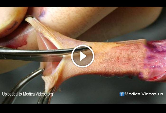 circumcision surgery