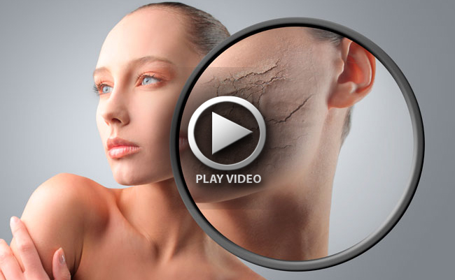 dry-cracking-skin-dehydrated