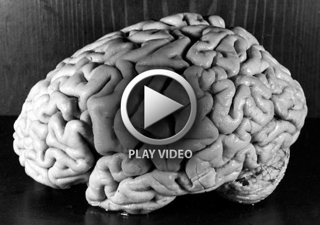 einsteins-brain