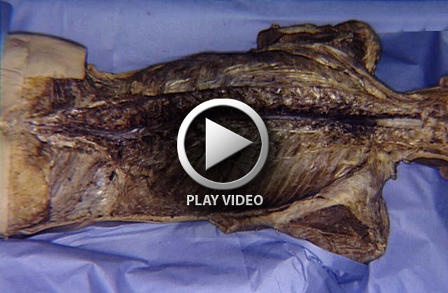 entire spinal cord