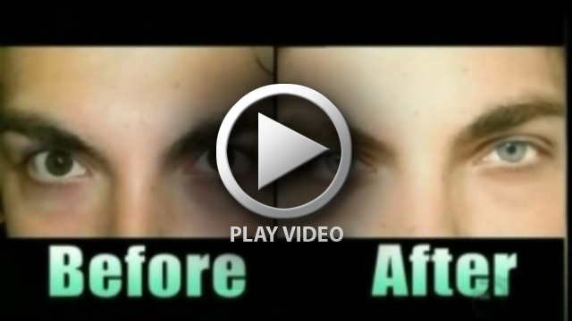 eye_color_change_surgery_no_more_color_contacts_newcoloriris