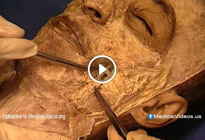 Medical Videos Human Head Medical Dissection Doktorz