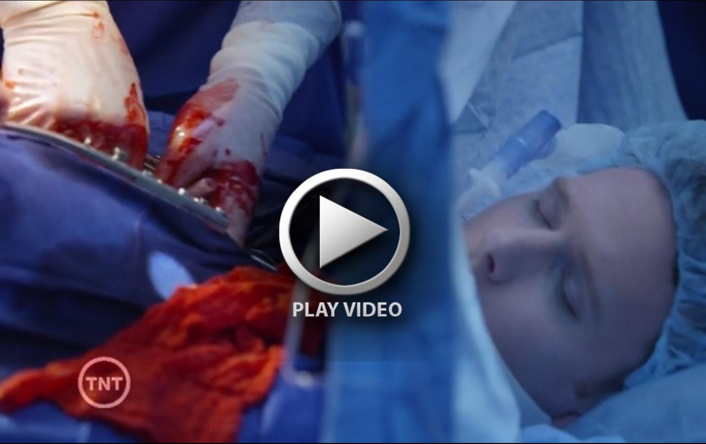 gunshot-to-head-organ-donation-heart-transplant-no-eye-protection