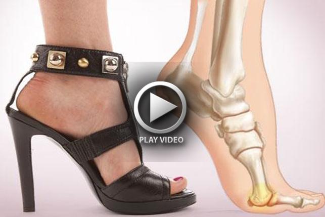 high heels damages