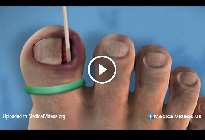 Ingrown Toenail Removal Surgery | | DOKTORZ