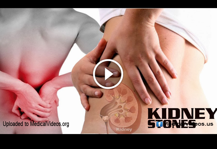 Medical Information: How Kidney Stones Form     DOKTORZ