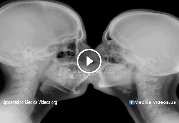 Medical Videos Sexual Intercourse Activity Inside Mri Machine
