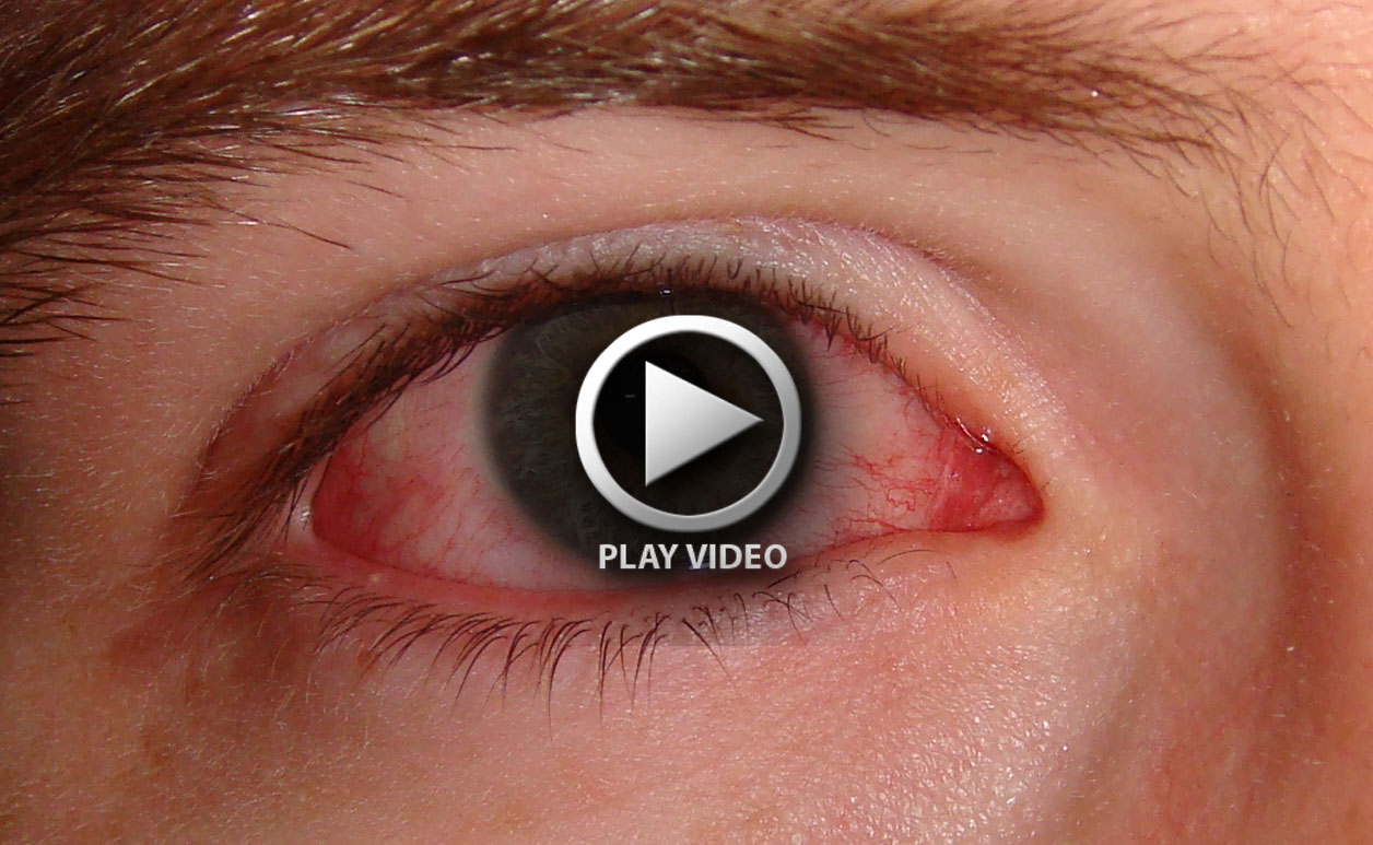 pink-eye-home-remedies