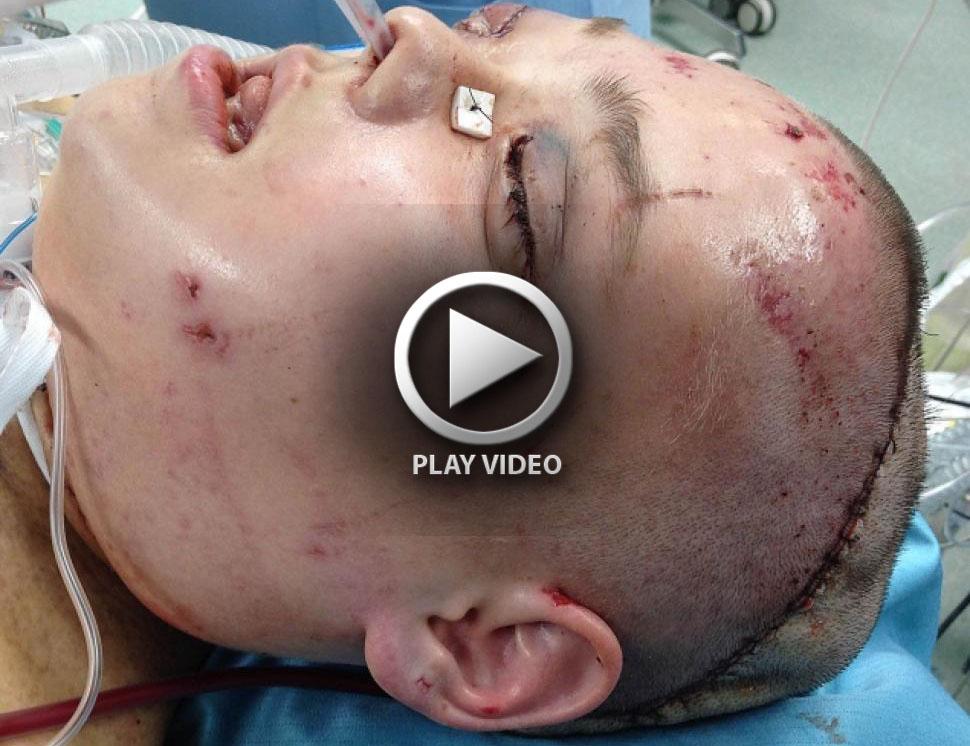 poland-face-transplant