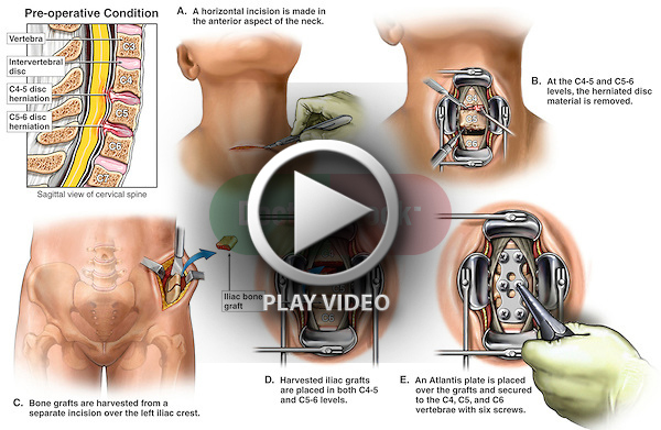 Whiplash Injury - Anterior Cervical Discectomy (Diskectomy) and Spinal Fusion Surgery
