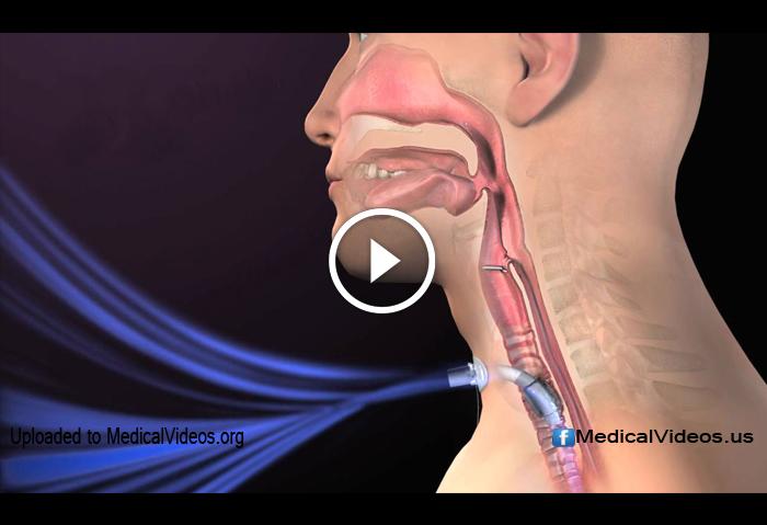 procedure neck