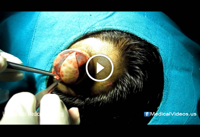 Medical Videos: Large Sebaceous Cyst Scalp Removal Surgery | | DOKTORZ