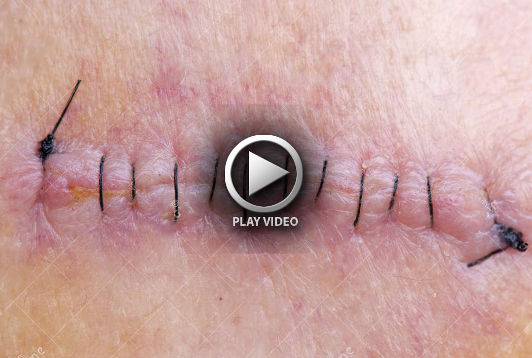stitches-skin-cancer-removal-25804537