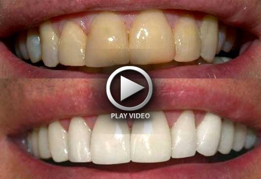 teeth_whitening1big