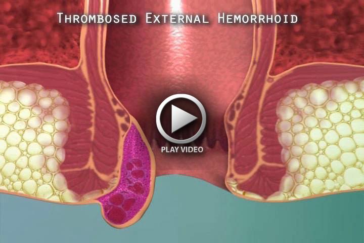 thrombosed-external-hemorrhoid