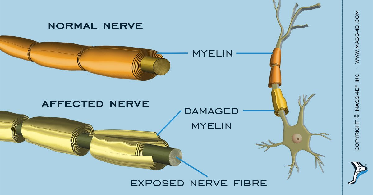 the symptoms and treatment of the guillain barre syndrome a fatal condition After a very extensive examination and discovery process over the past few weeks, i have been diagnosed with having guillain barre syndrome, which is an autoimmune disease.
